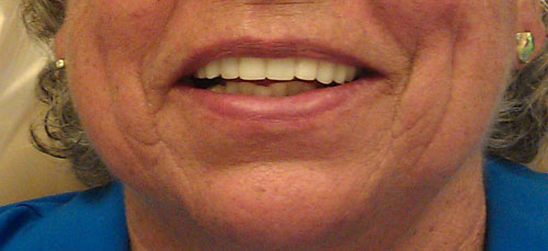 Patient smiling with new straight Lumineers® from Fairmount Dental Center in Salem, OR
