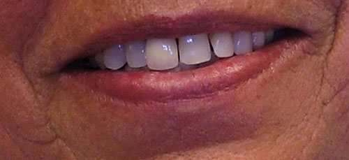 Patient smiling with gaps in her teeth
