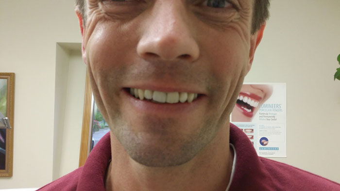 Full smile of a patient after dental implants from Fairmount Dental Center in Salem, OR