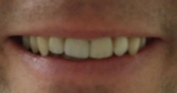 A patient smiling after dental implants from Fairmount Dental Center in Salem, OR