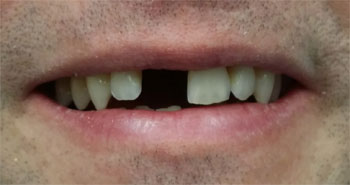 A patient smiling before dental implants