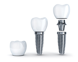 Diagram of a dental implant, post and dental crown next to each other used by Fairmount Dental Center in Salem, OR