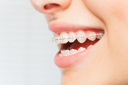 Do You Have Spacing Issues in Your Smile?
