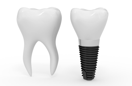 Dental Implant diagram at Fairmount Dental Center in Salem, OR