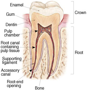 Root Canal diagram used by Salem Dentist to educate patients on Root Canal Procedures at Fairmount Dental Center.