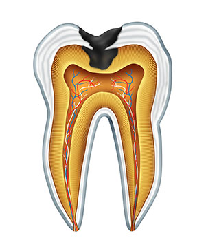 Diagram of a tooth with tooth decay before treatment at Fairmount Dental Center in Salem, OR