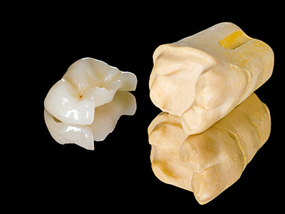 Image of an Onlay and mold, Onlay and Inlays are used by your Salem, Or Dentist to repair teeth.
