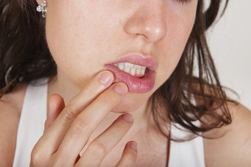 What Are the Most Common Causes of Mouth Sores?