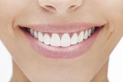 A woman happy with her dental veneers.