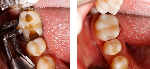 Before and after dental fillings by Fairmount Dental Center in Salem, OR